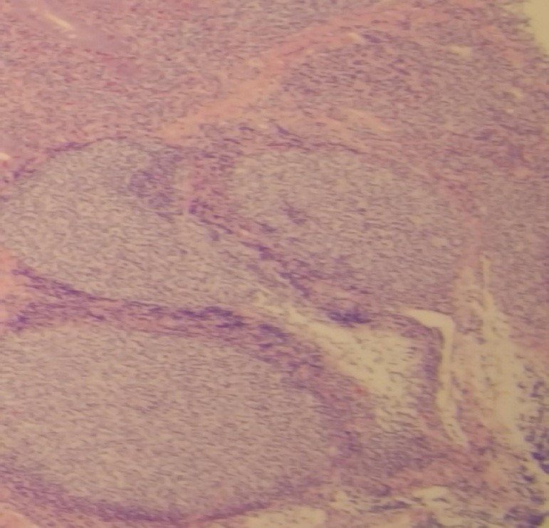 Biopsy showed Follicular Lymphoma